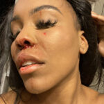 """""""Domestic violence is real especially in same gender relationship"""" – Lady cries out after being battered by her girlfriend"""