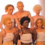 Cameroonian actress Memba shines light on albinos…strength beyond all odds