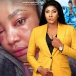 Angela Okorie: Pellets still coming out 2years after I was shot